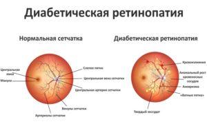 retinopatija