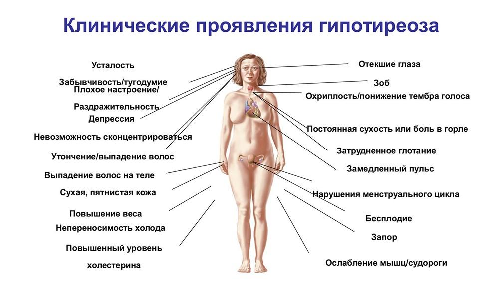 gipoterioz-klinicheski-projavlenia