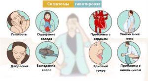 gipotireoz-simptomy