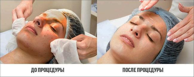 himicheskiy-piling-do-posle