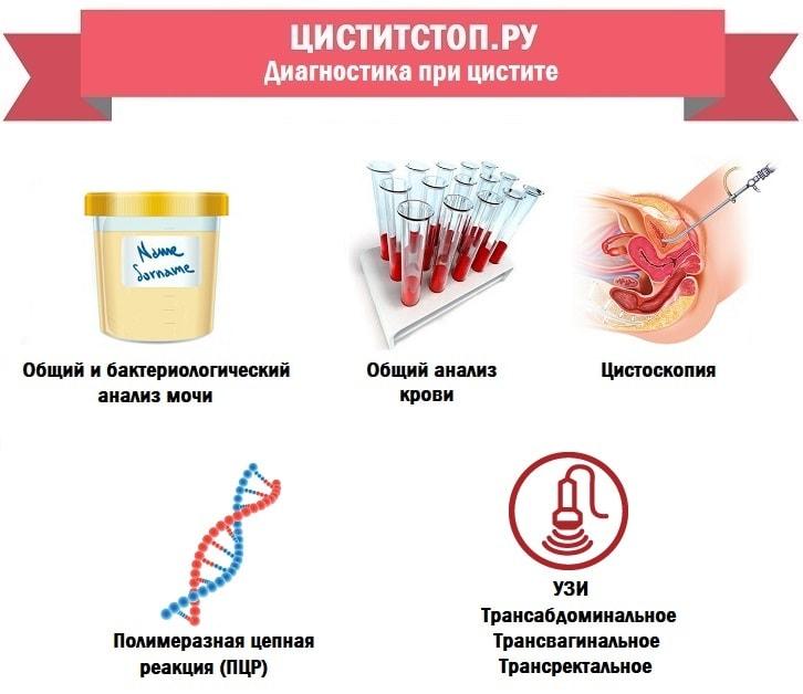 diagnostika-pri-tsistite-min