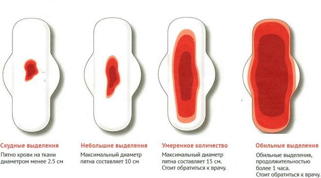 videlenija-pri-menstryazii