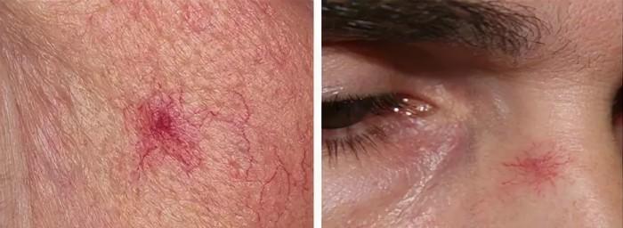 zvezdchataja-angioma