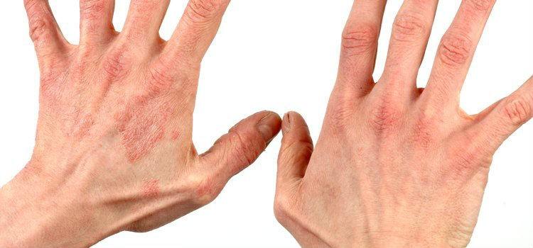 kontaktnii-dermatit